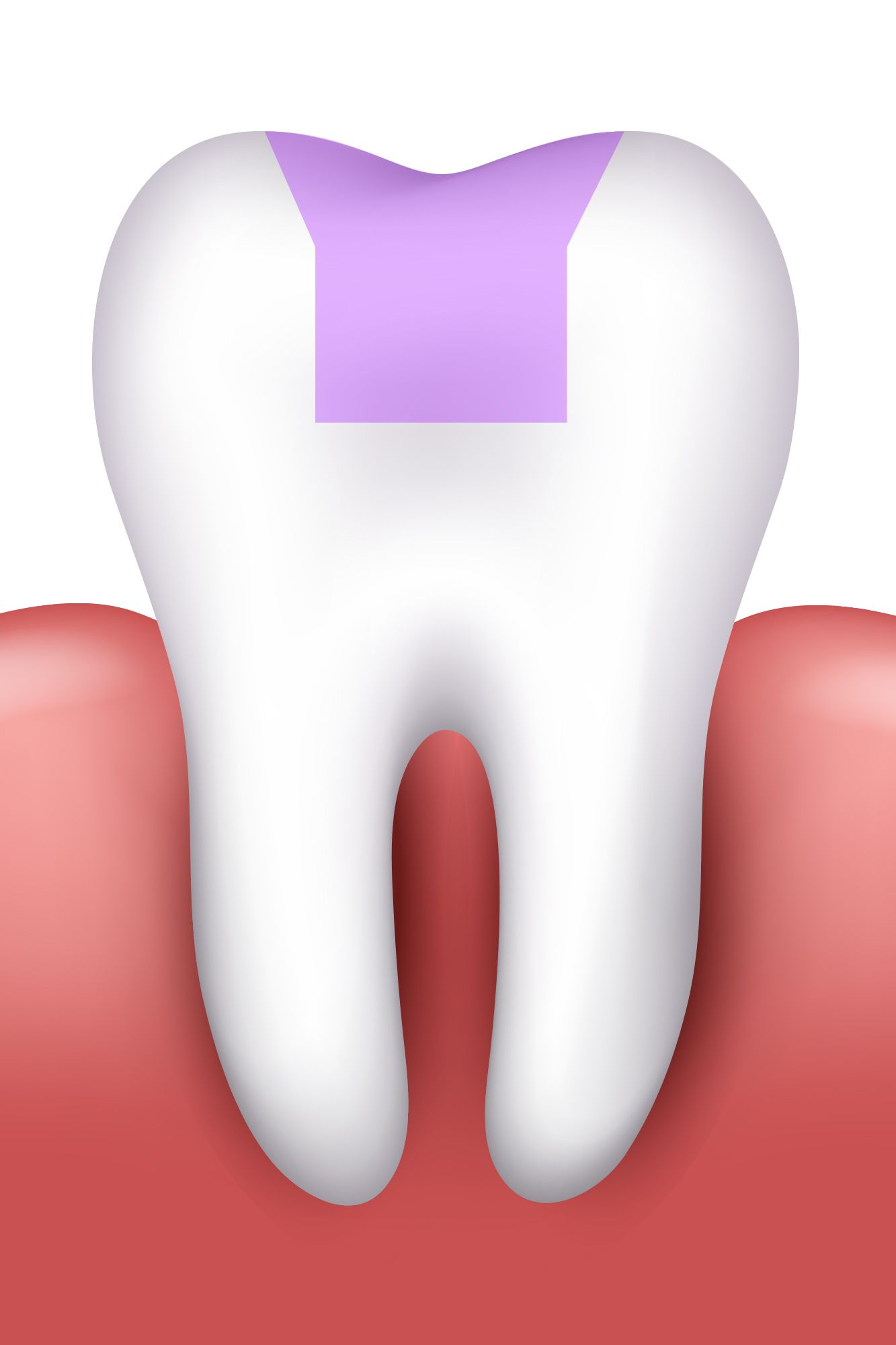 An illustration of a tooth that has been restored with a dental inlay