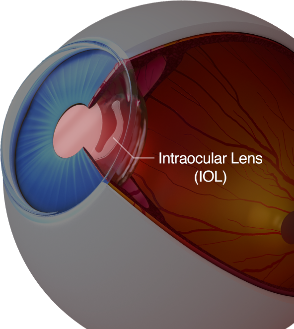 Illustration of an intraocular lens