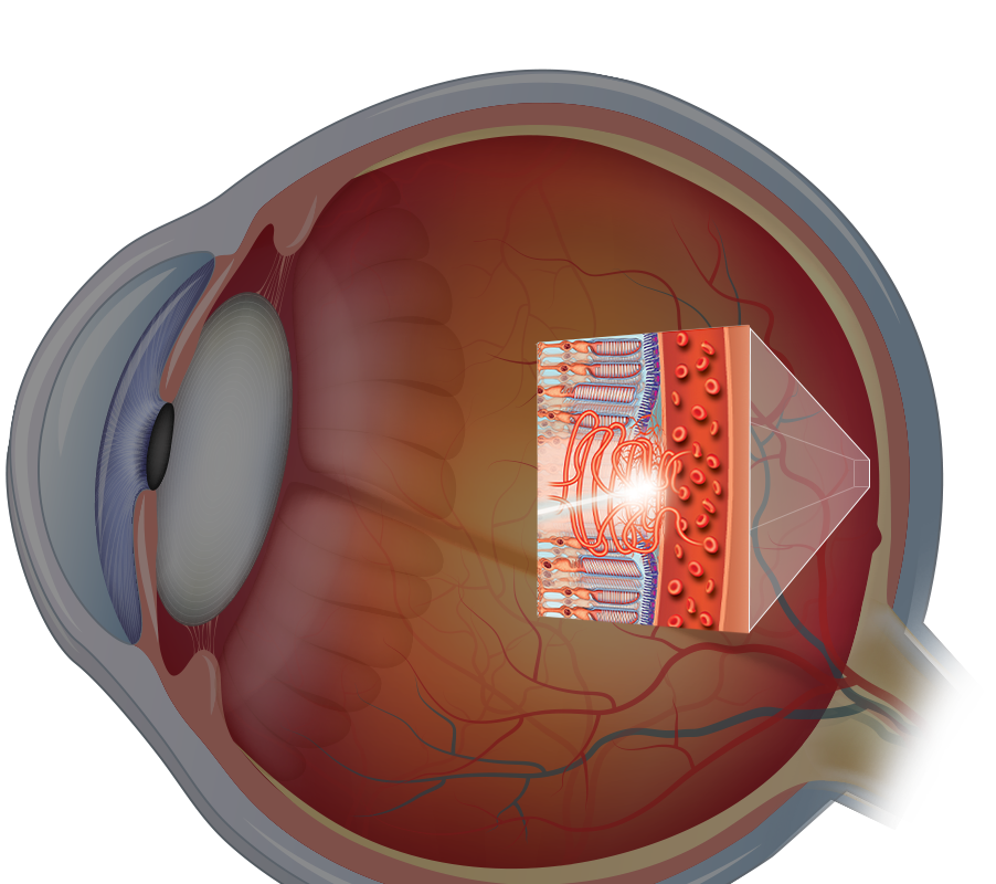 Crossection graphic of eye with magnified rear of eye portion showing nerves