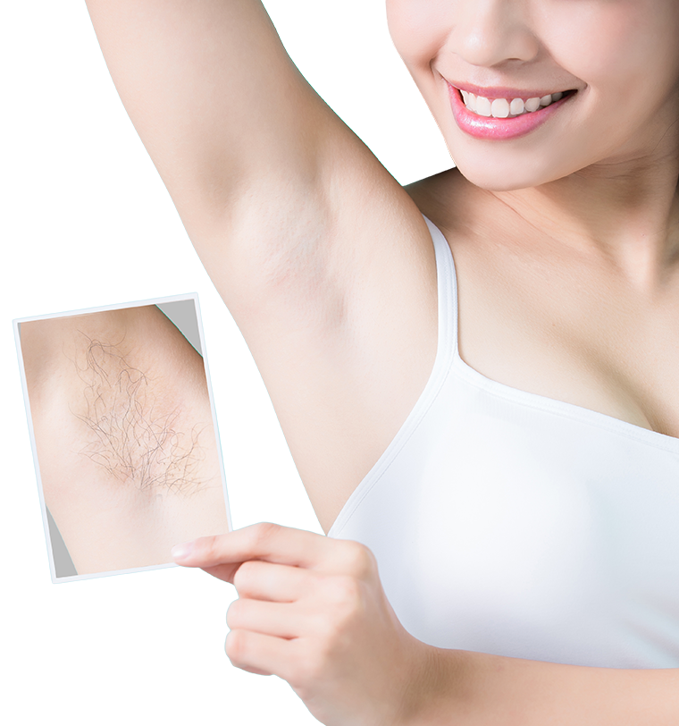 Woman with a hairless underarm, comparing her results to a photo of her underarm with hair