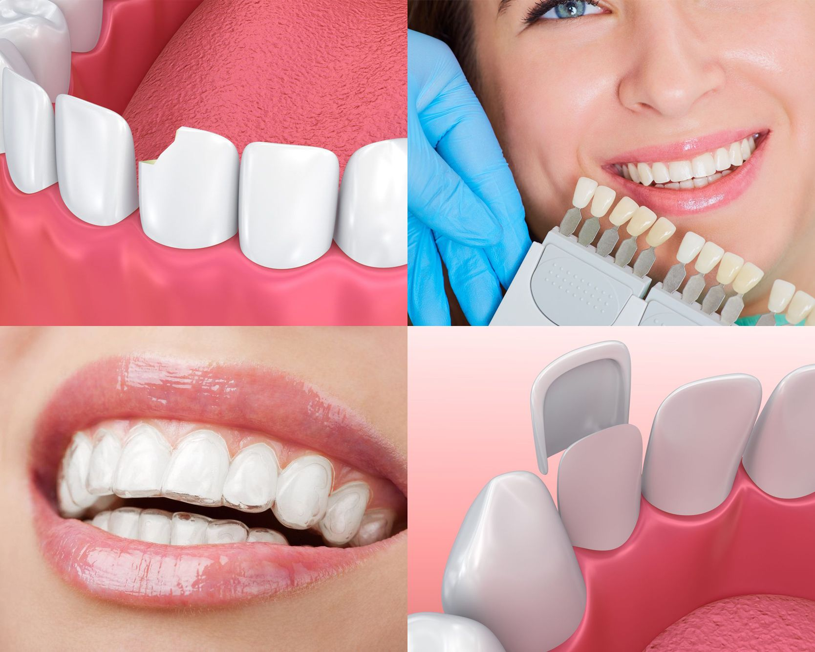 Collage of smile makeover images