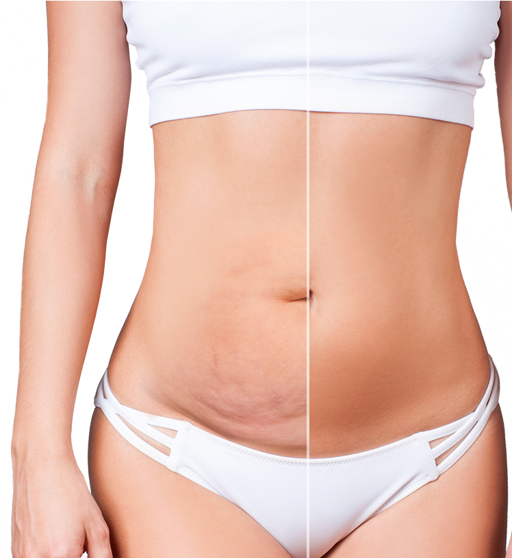 A female showing off her tummy tuck results