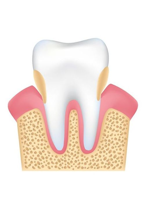 A tooth affected by periodontal disease and gum recession