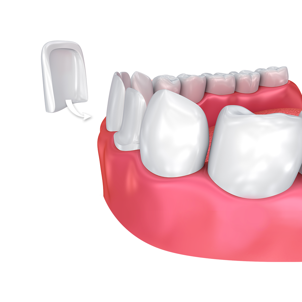 Digital image of porcelain veneer placement