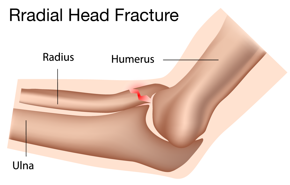 Treatment Of Elbow Fractures Austin Tx