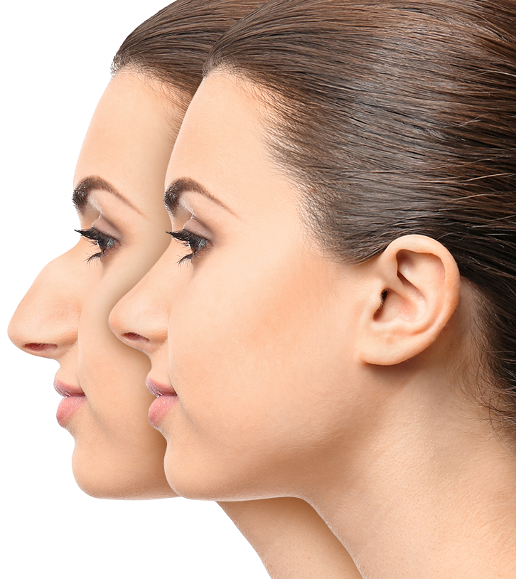 Side-by-side photos show before and after rhinoplasty images.