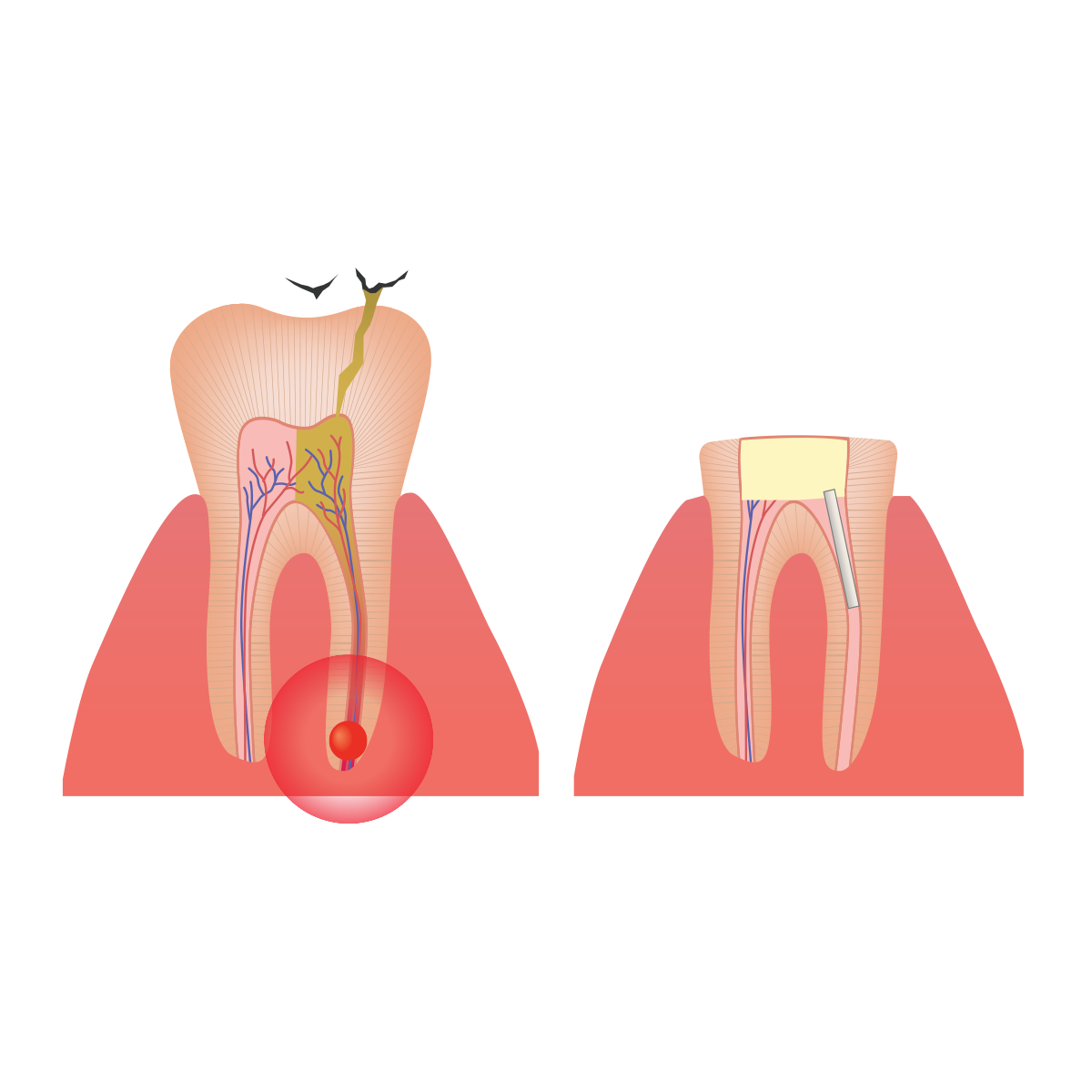 Before and after root canal therapy digital image