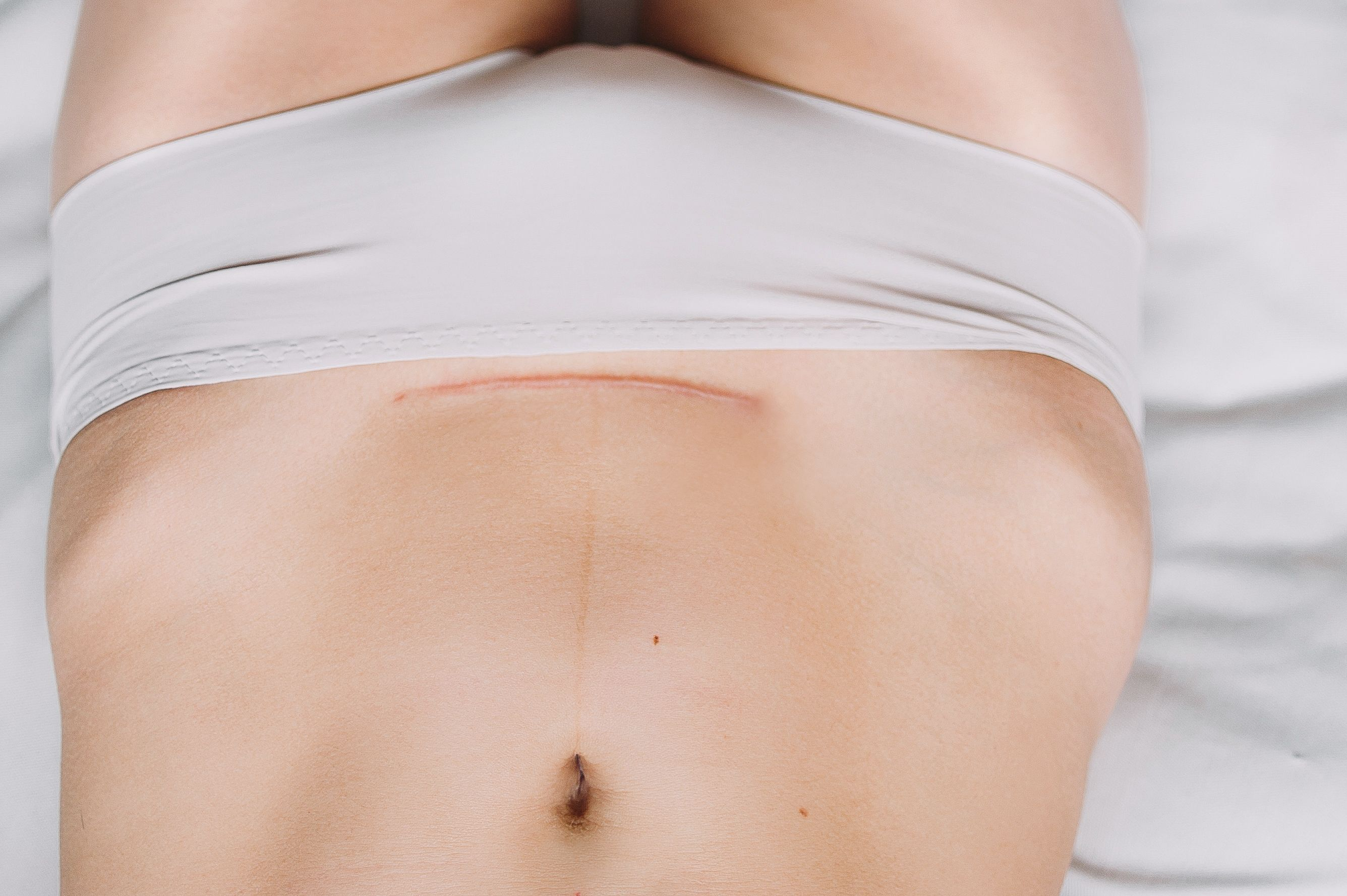 38d5133fd7 Mini vs. Traditional Tummy Tuck - Tijuana