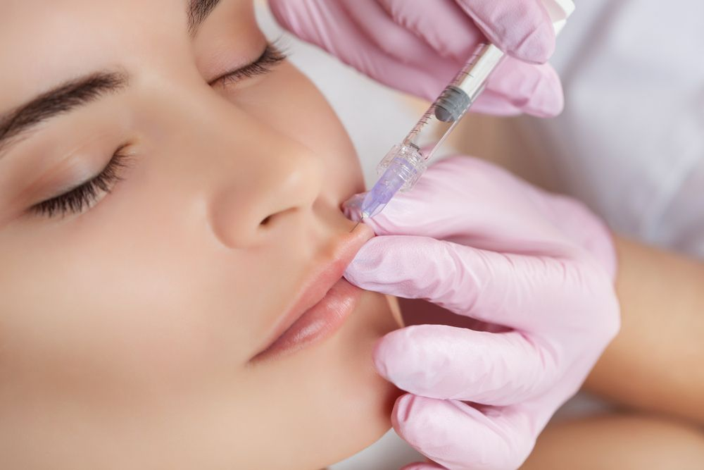 Dermal filler injections for the lips