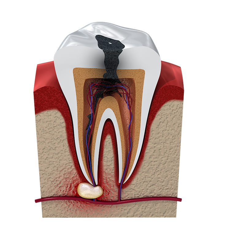 Illustration of a root canal infection