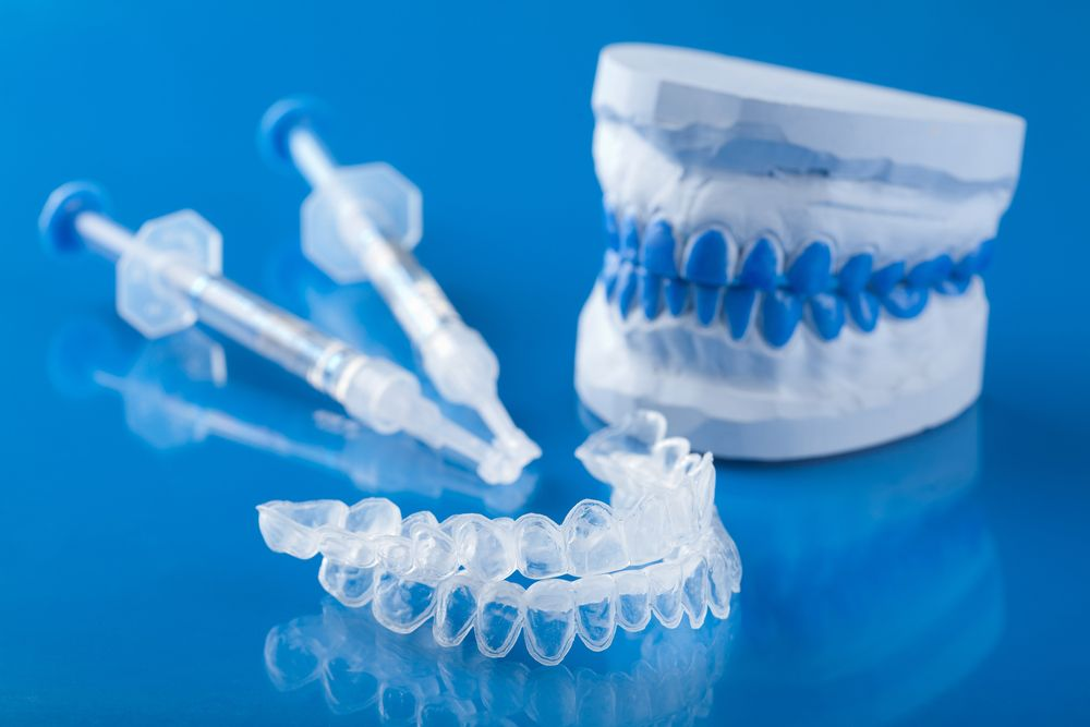 Photo of bleaching trays, whitening syringes, and a dental model on blue surface
