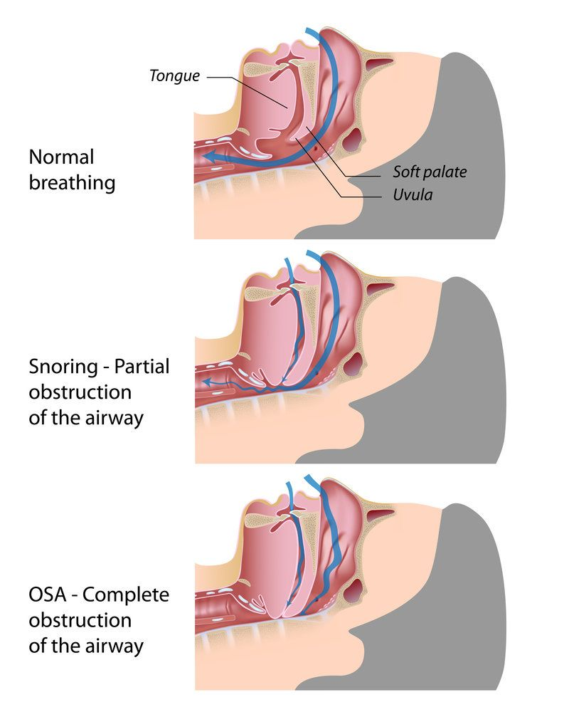 Illustration demonstrating the differences between normal breathing, partial airway obstruction, and complete airway obstruction
