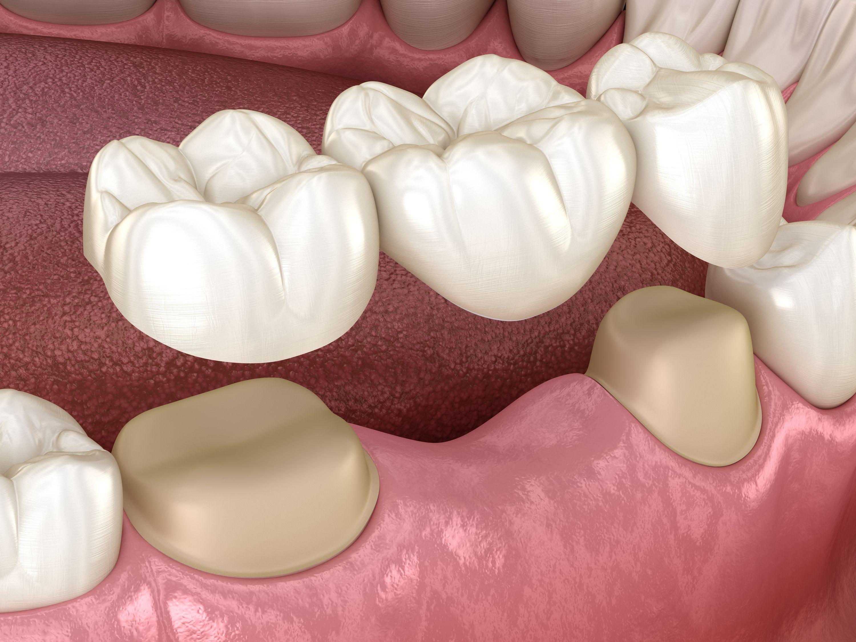 Puente Dental En Houston, TX | Best Dental