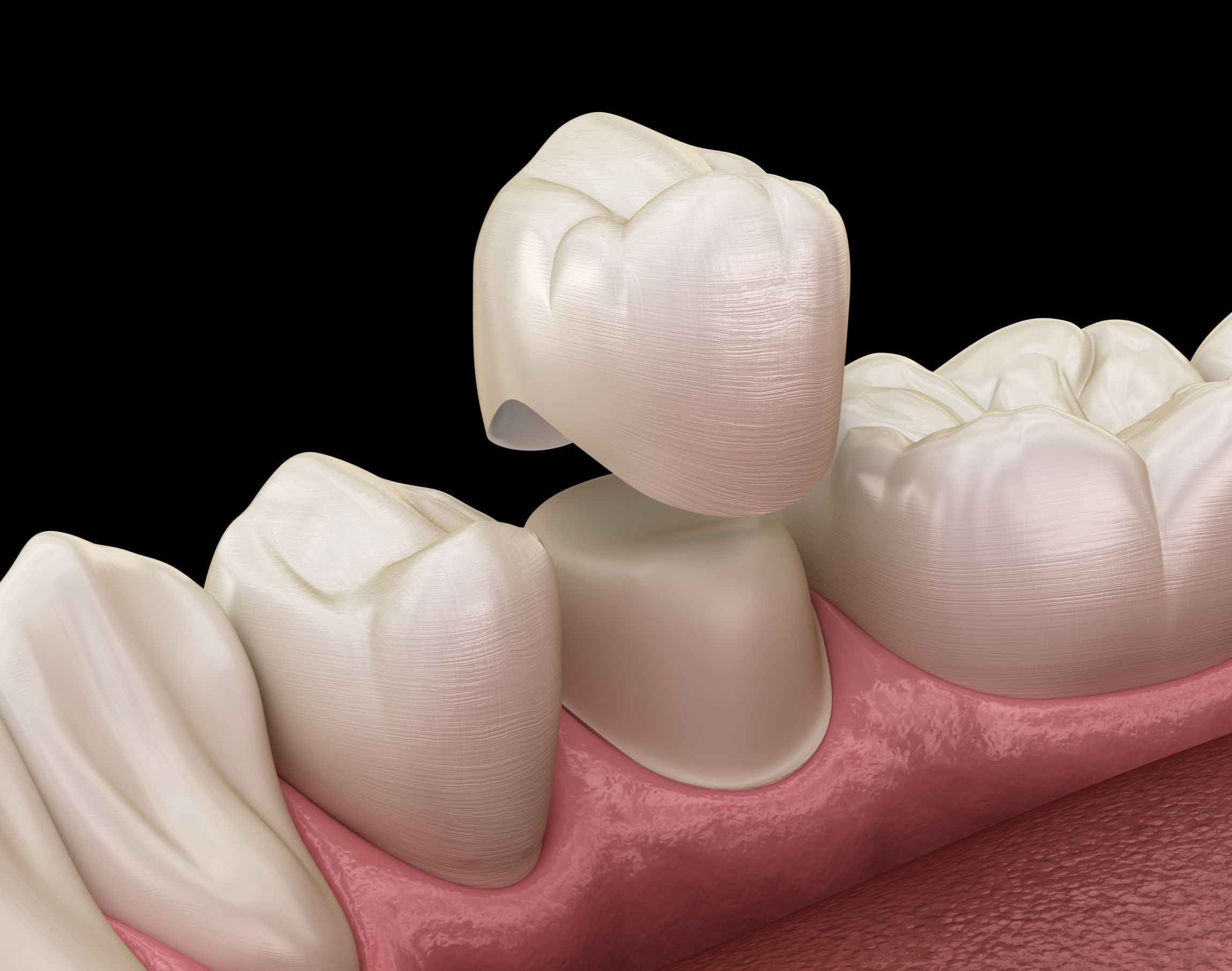 A porcelain dental crown