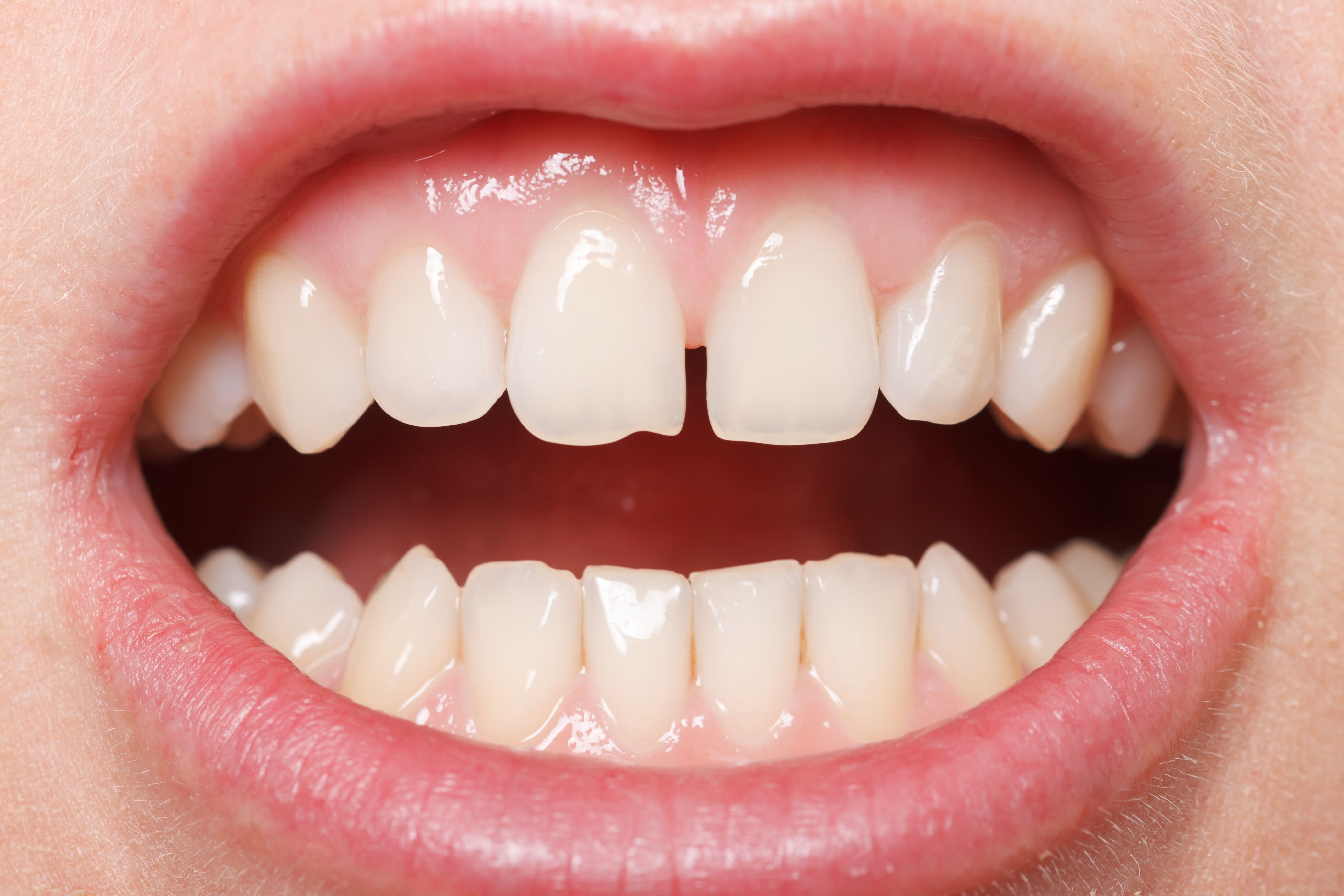 A person with a chipped tooth and gap