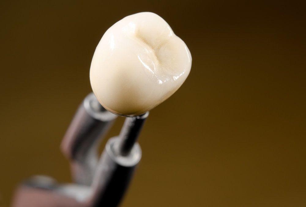 A custom ceramic dental crown