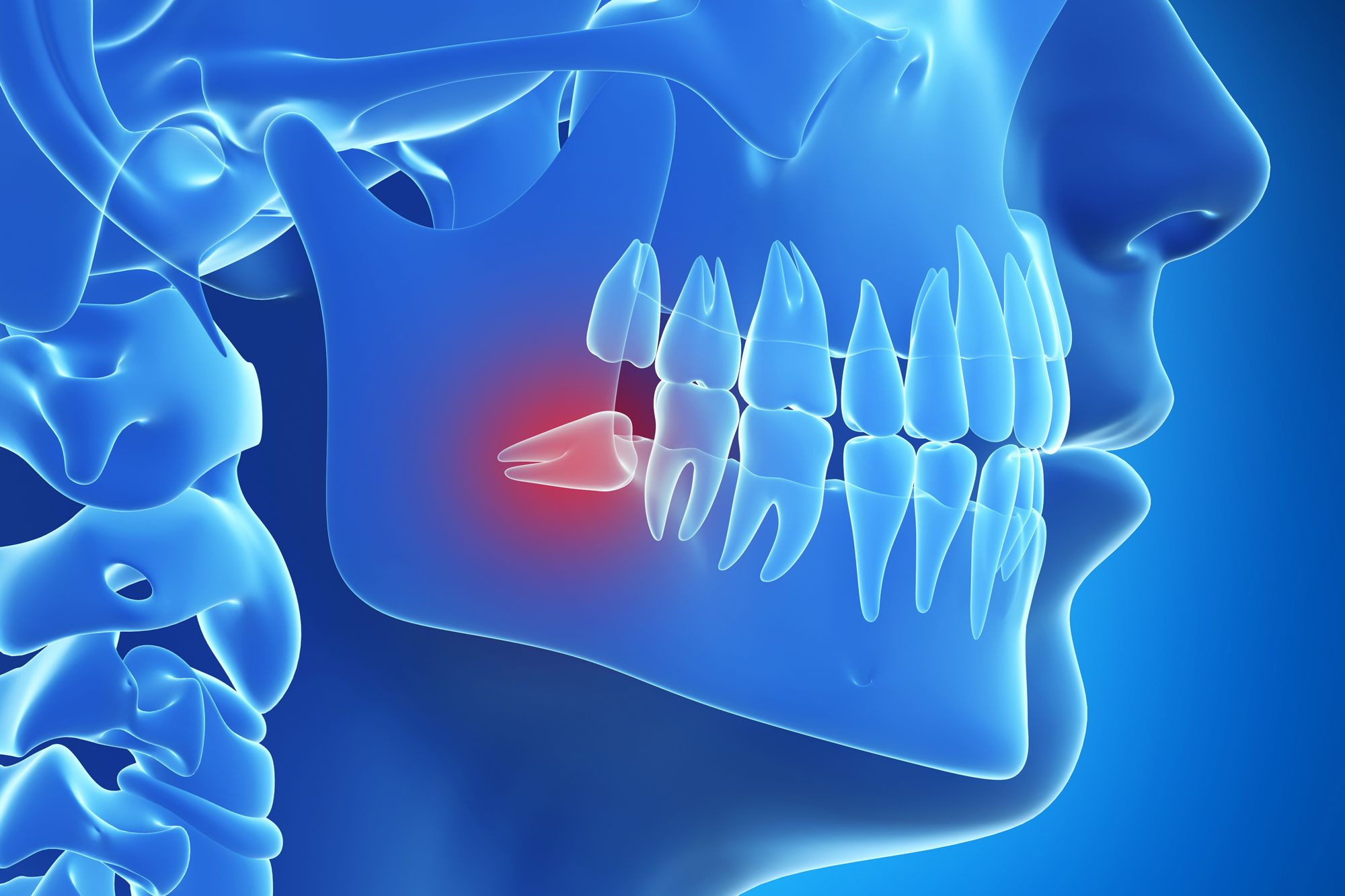 Blue image of jaw with wisdom tooth in red