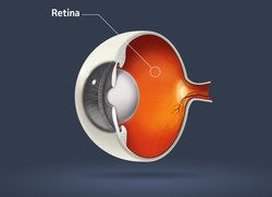 Monterey Eye Macular Degeneration