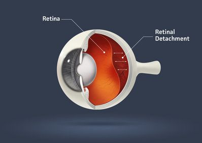 A retinal detachment illustration
