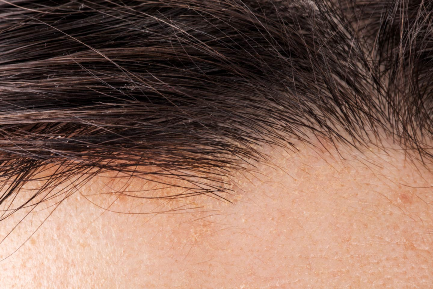 Close-up of a patient's hairline