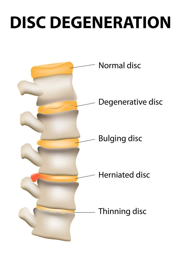 A diagram of the spinal discs
