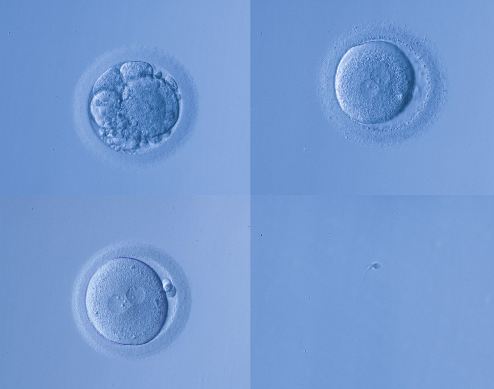 An egg dividing into an embryo