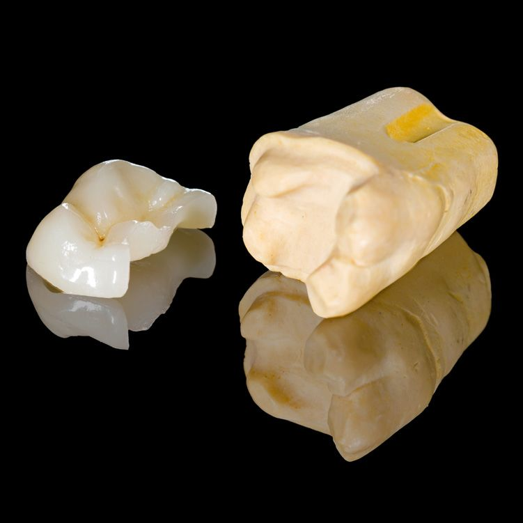 Dental inlays and onlays model