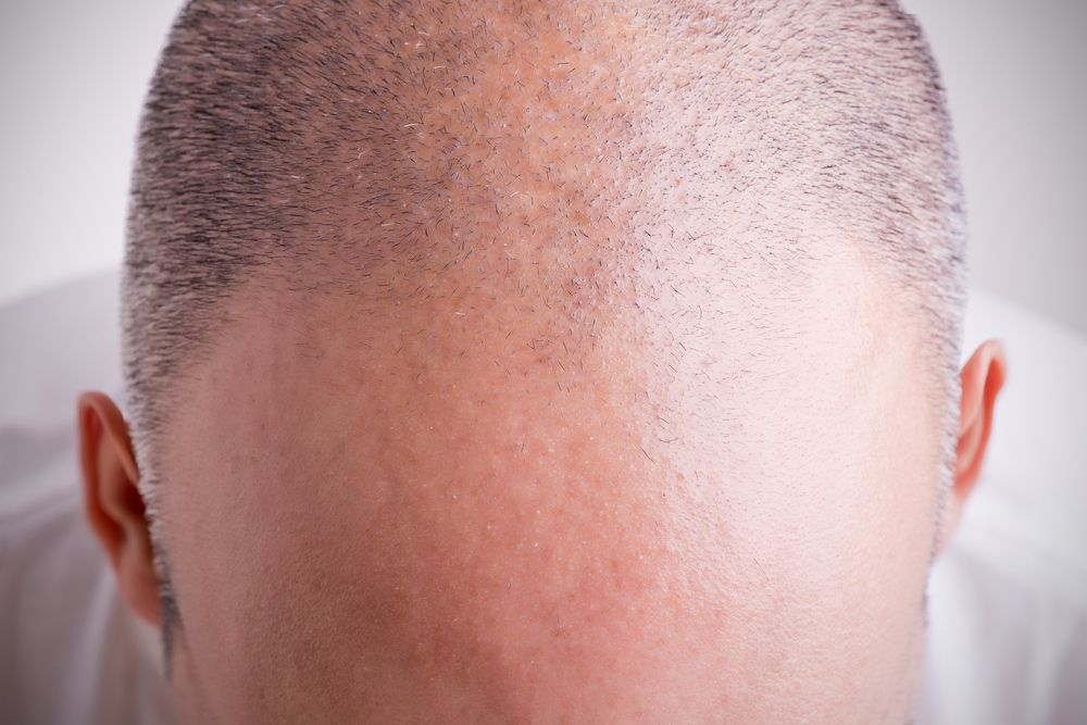 A man with a receding hairline