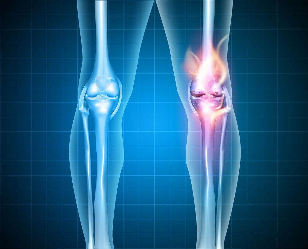 An injured knee