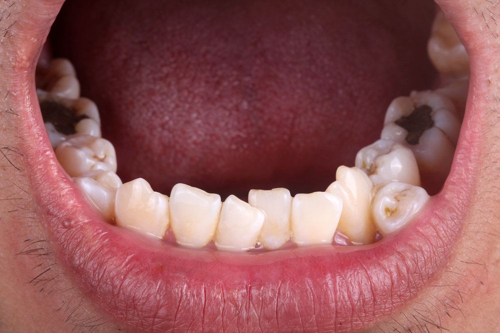 Close-up of a mouth with hyperdontia