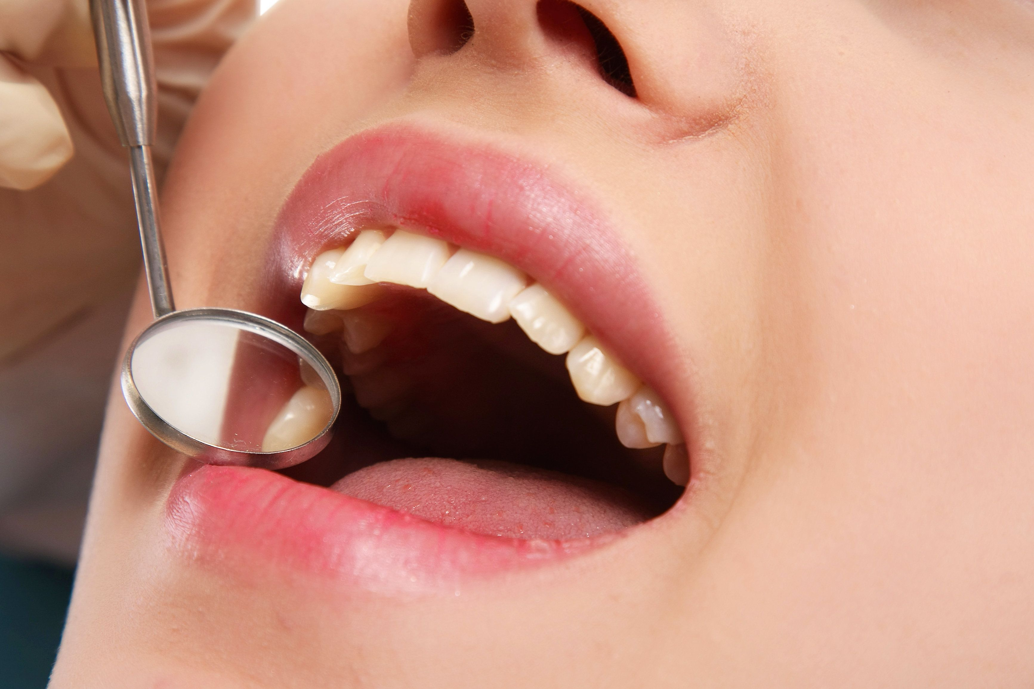 Teeth being examined with a dental mirror