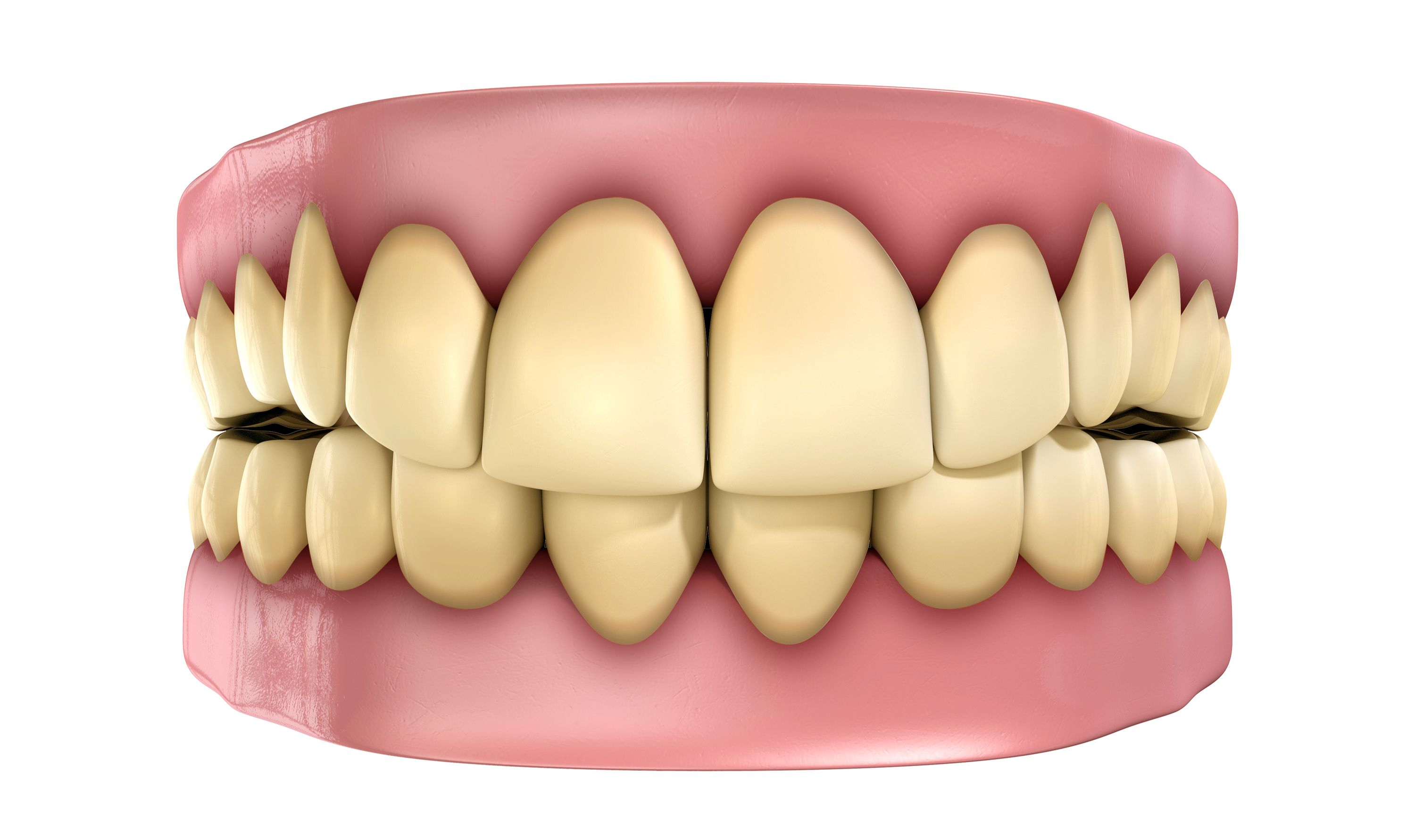 Digital image of dental model with stained teeth