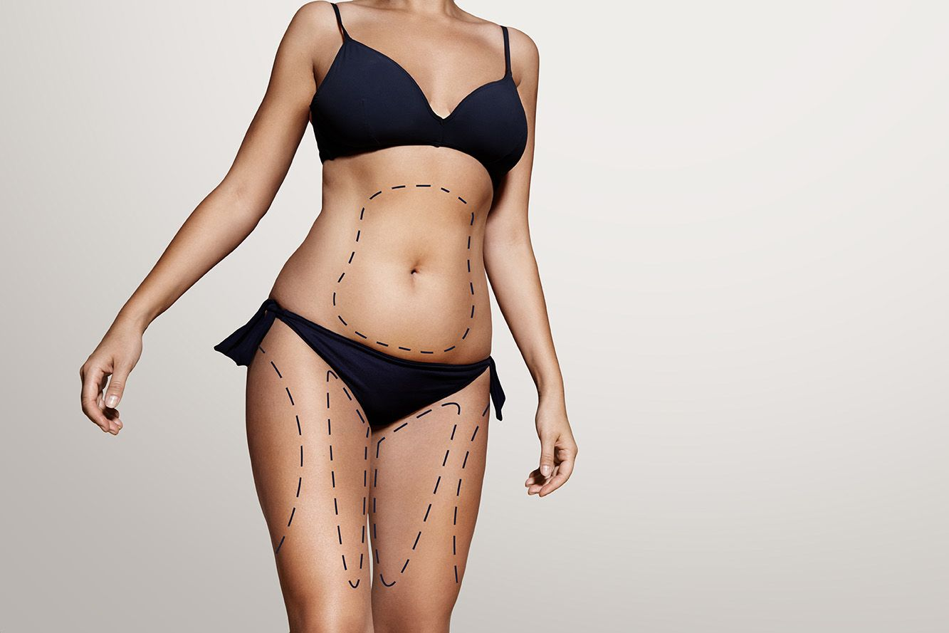 Photo composite of woman's abdomen and thighs marked for body contouring