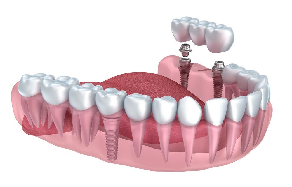 An illustration of a dental implant-supported bridge