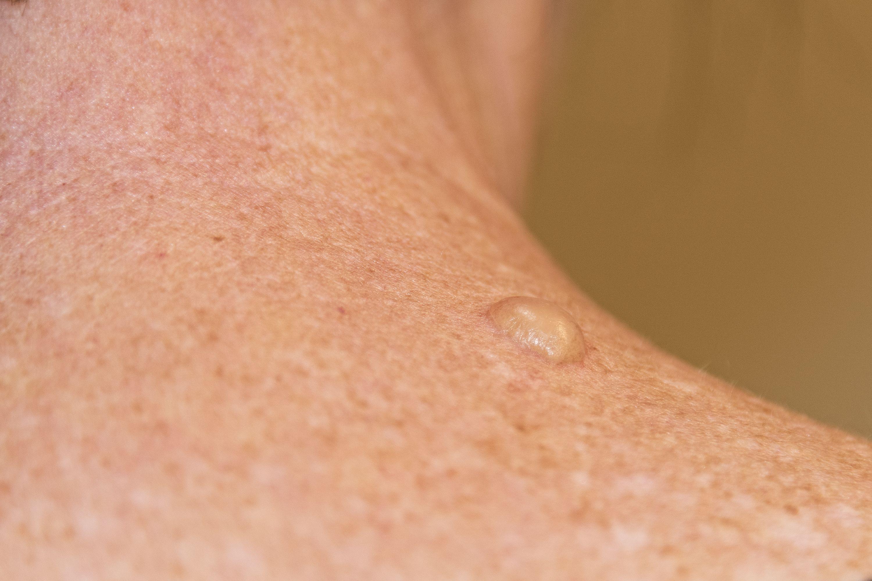 A precancerous growth on the skin
