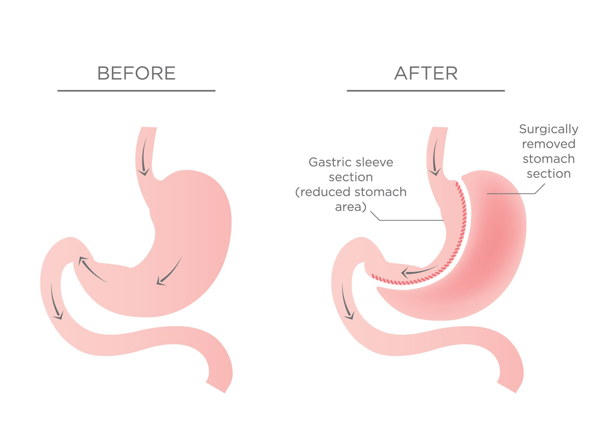 Stomach before and after sleeve gastrectomy surgery