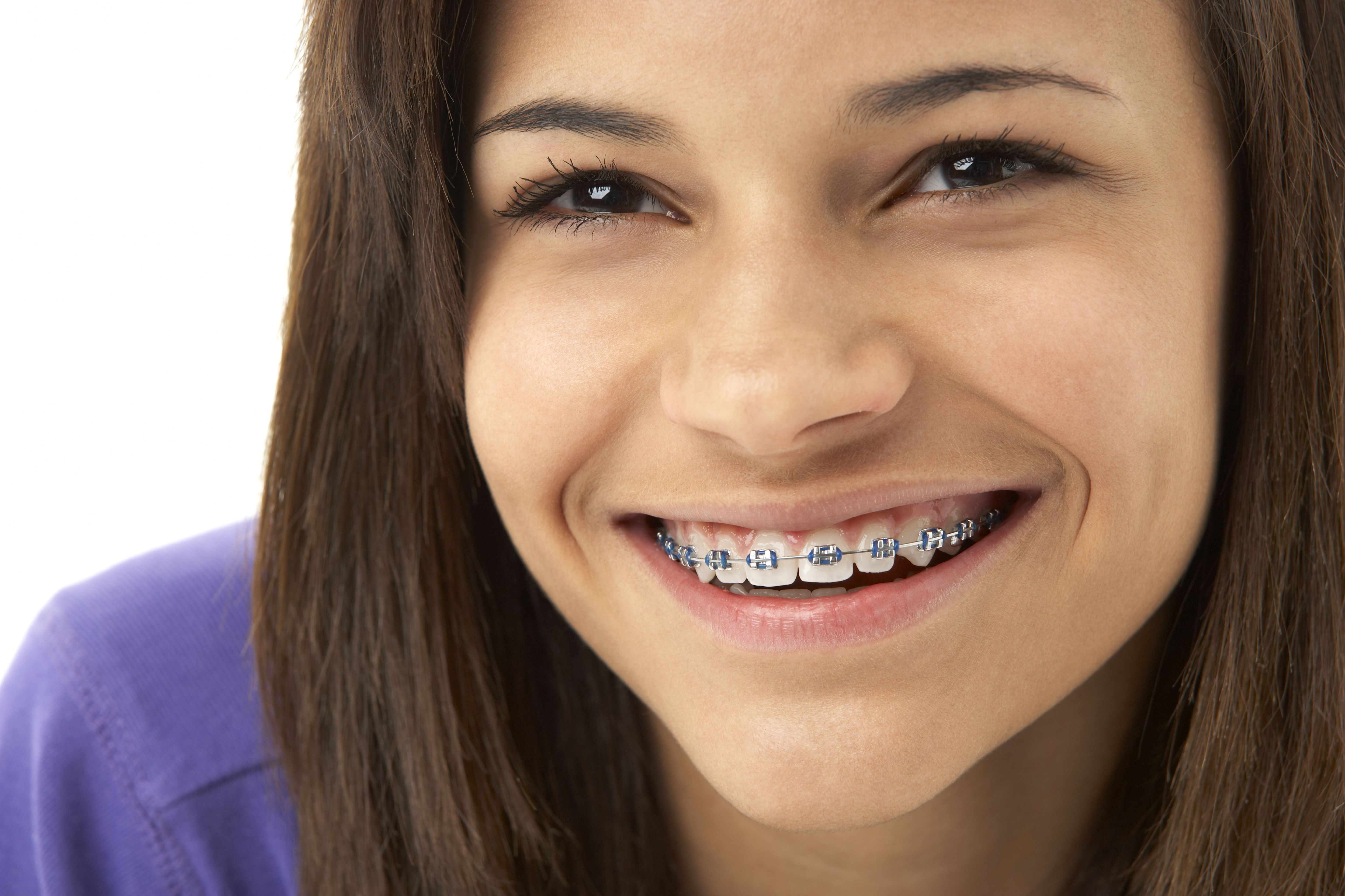 Portrait of young girl smiling with braces