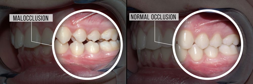 teeth with malocclusion vs. teeth with normal occlusion