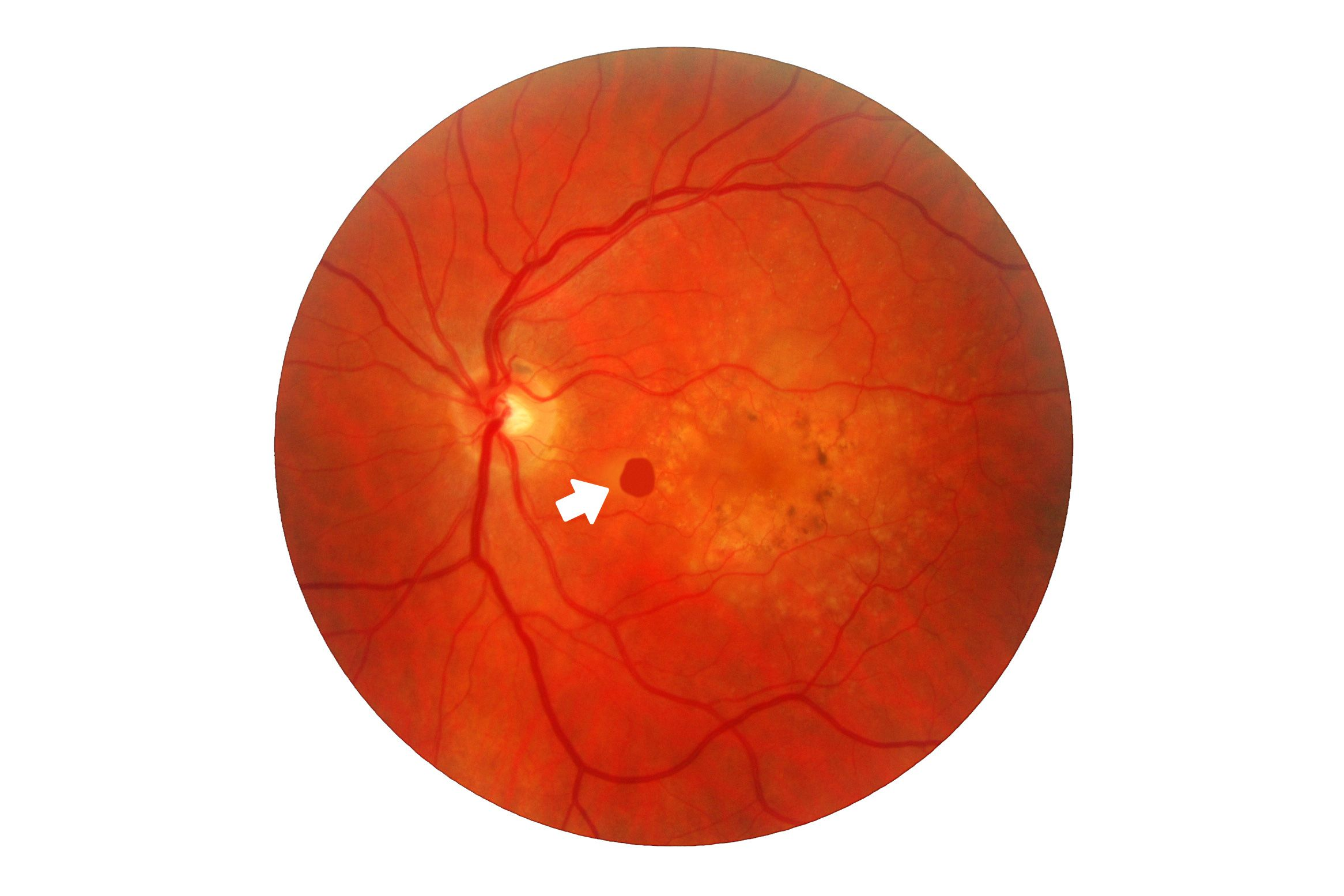 An eye scan showing macular degeneration