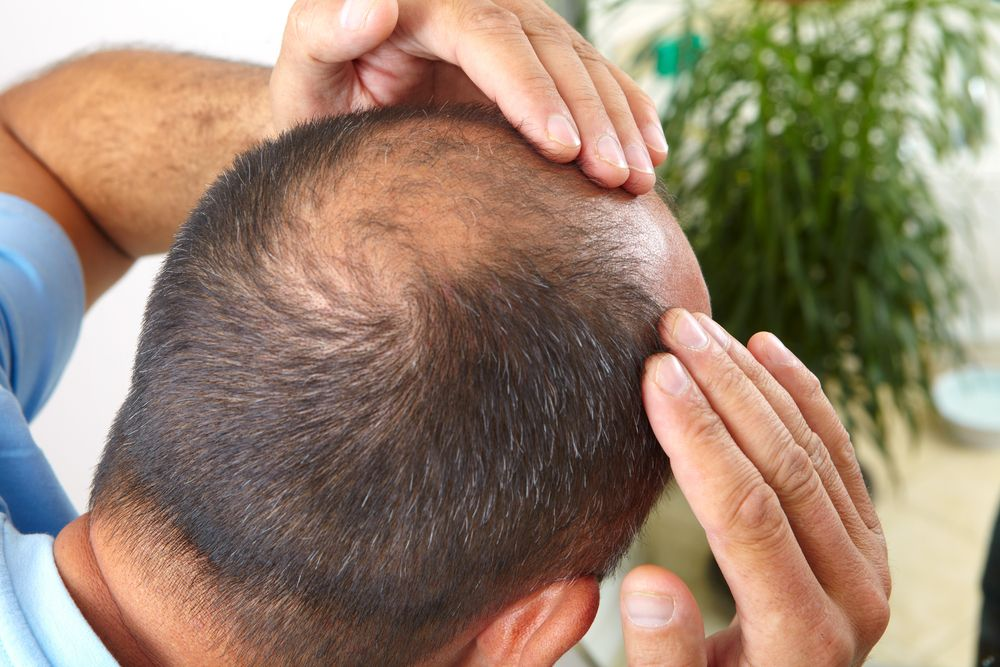 A man feeling his scalp for swelling after hair transplant surgery