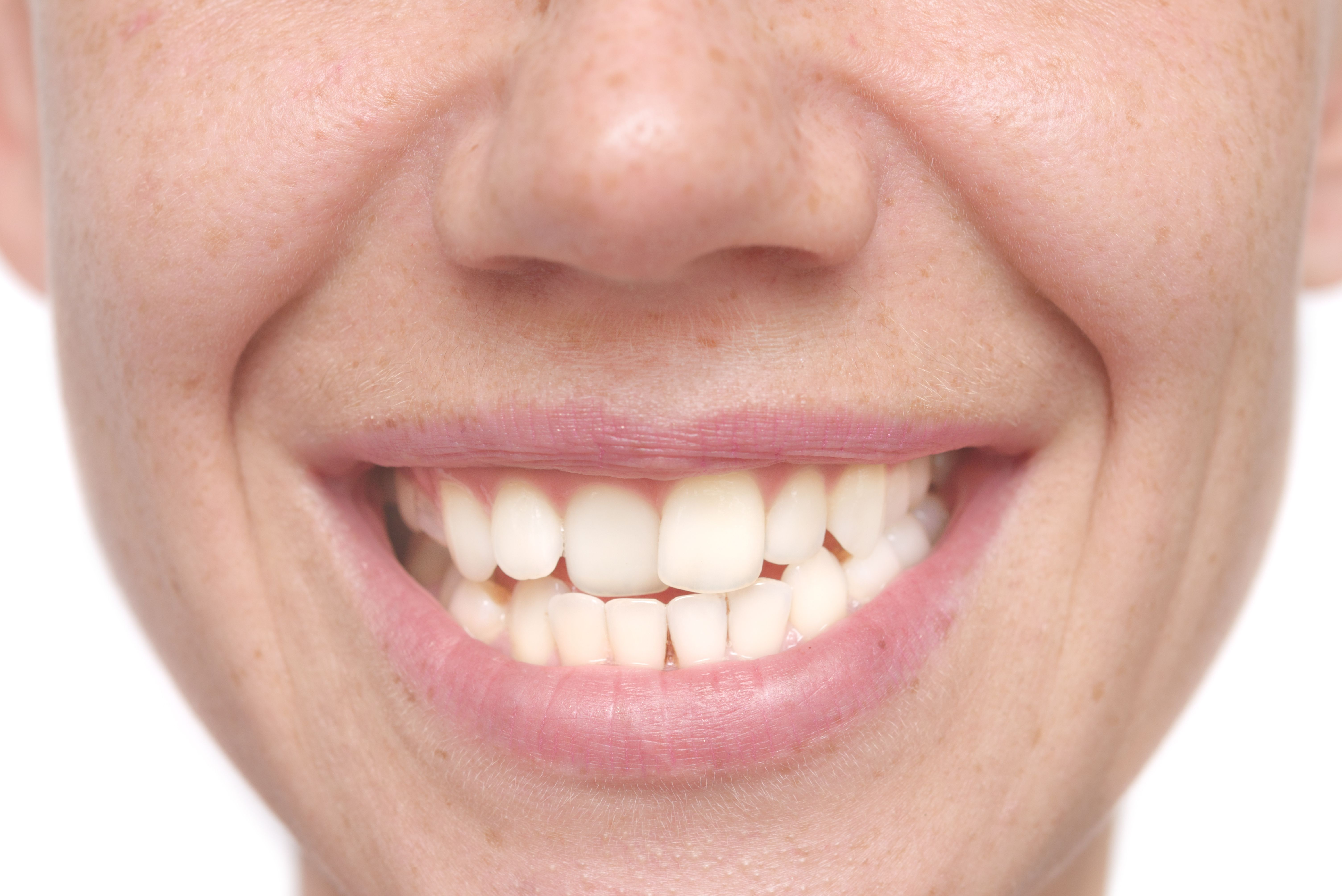 A person with crooked teeth and an uneven smile