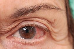 A close up of a patient's eye