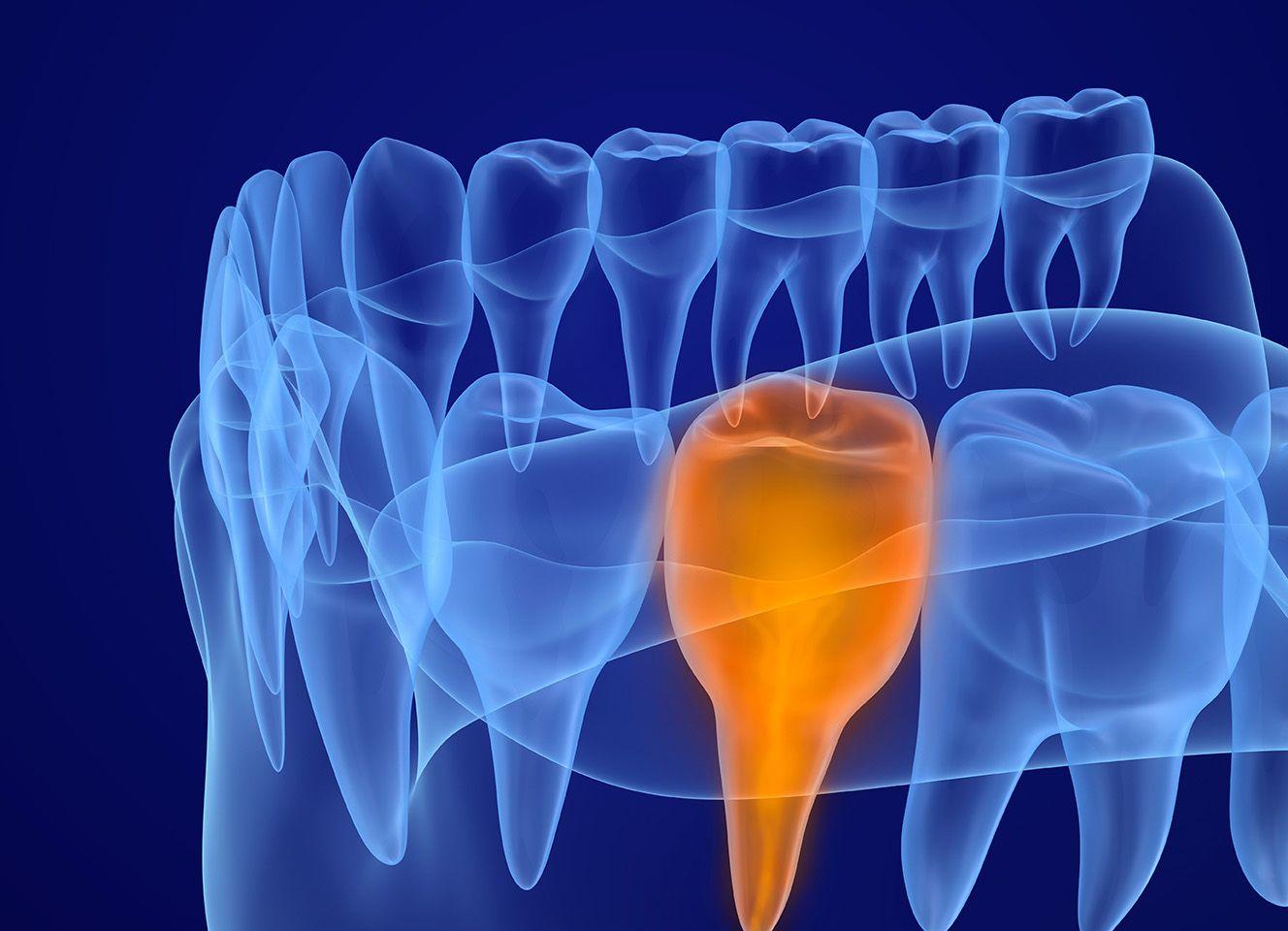 Digital image of teeth