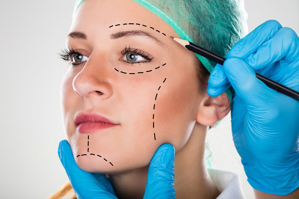 doctor drawing on patient's face for facelift procedure
