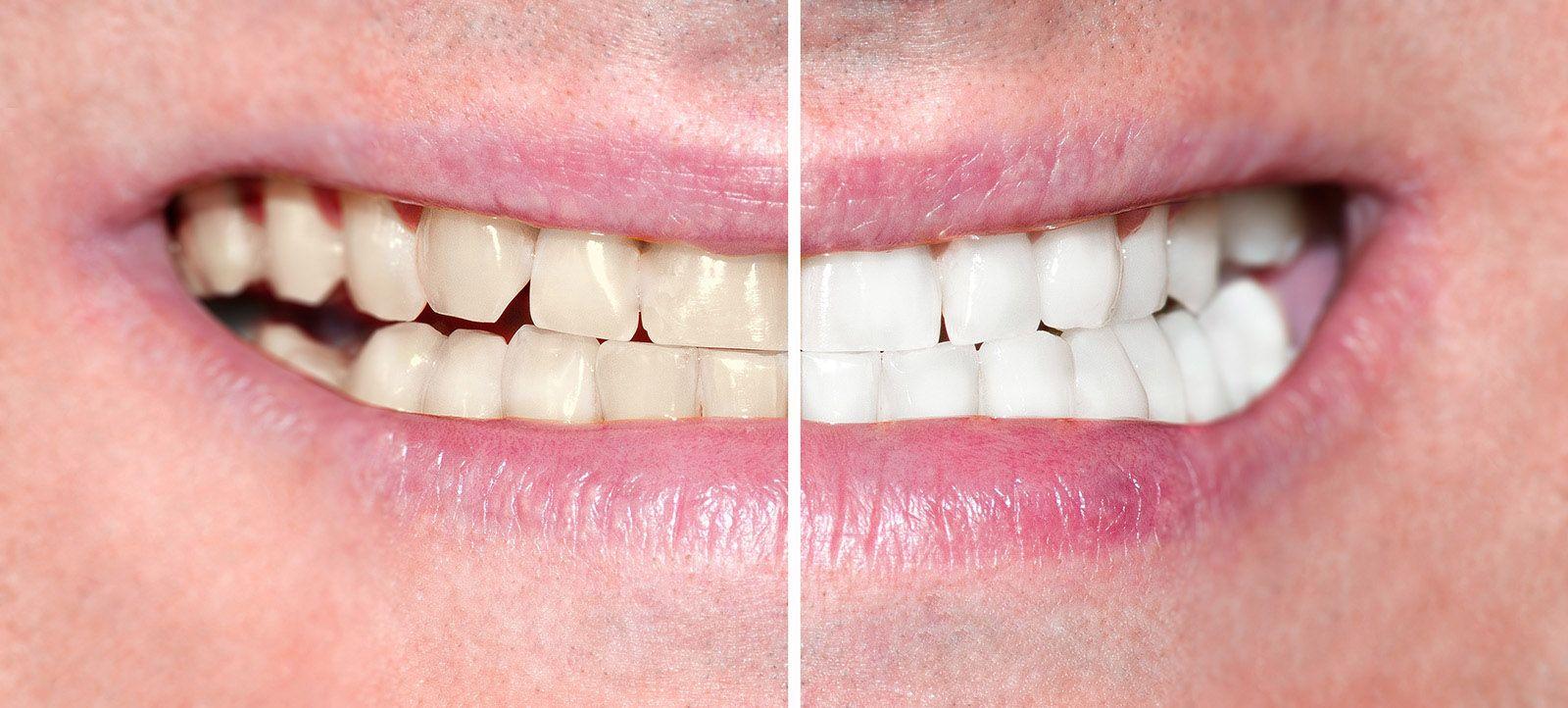 Professionally whitened teeth