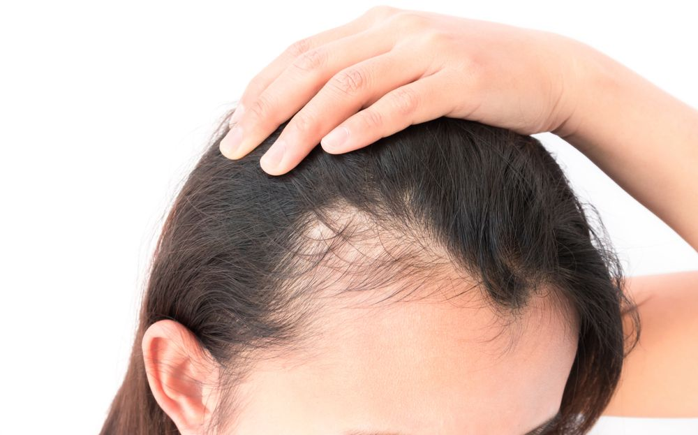 Patient pulling back hair to reveal hair loss