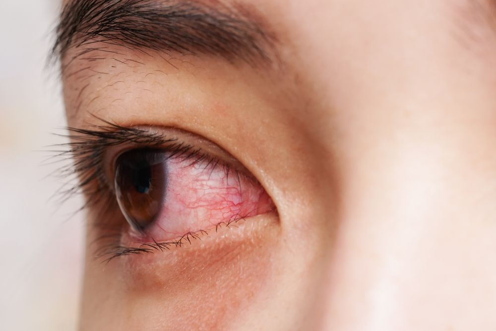 A person with red, irritated eyes from allergies