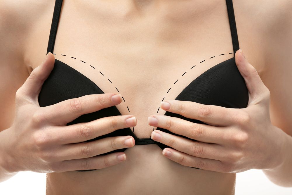 Photo of woman's breasts in black bra