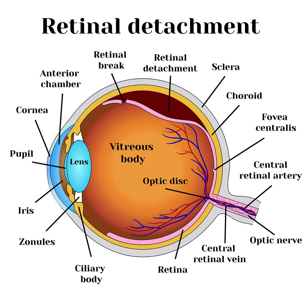 Illustration of retinal detachment