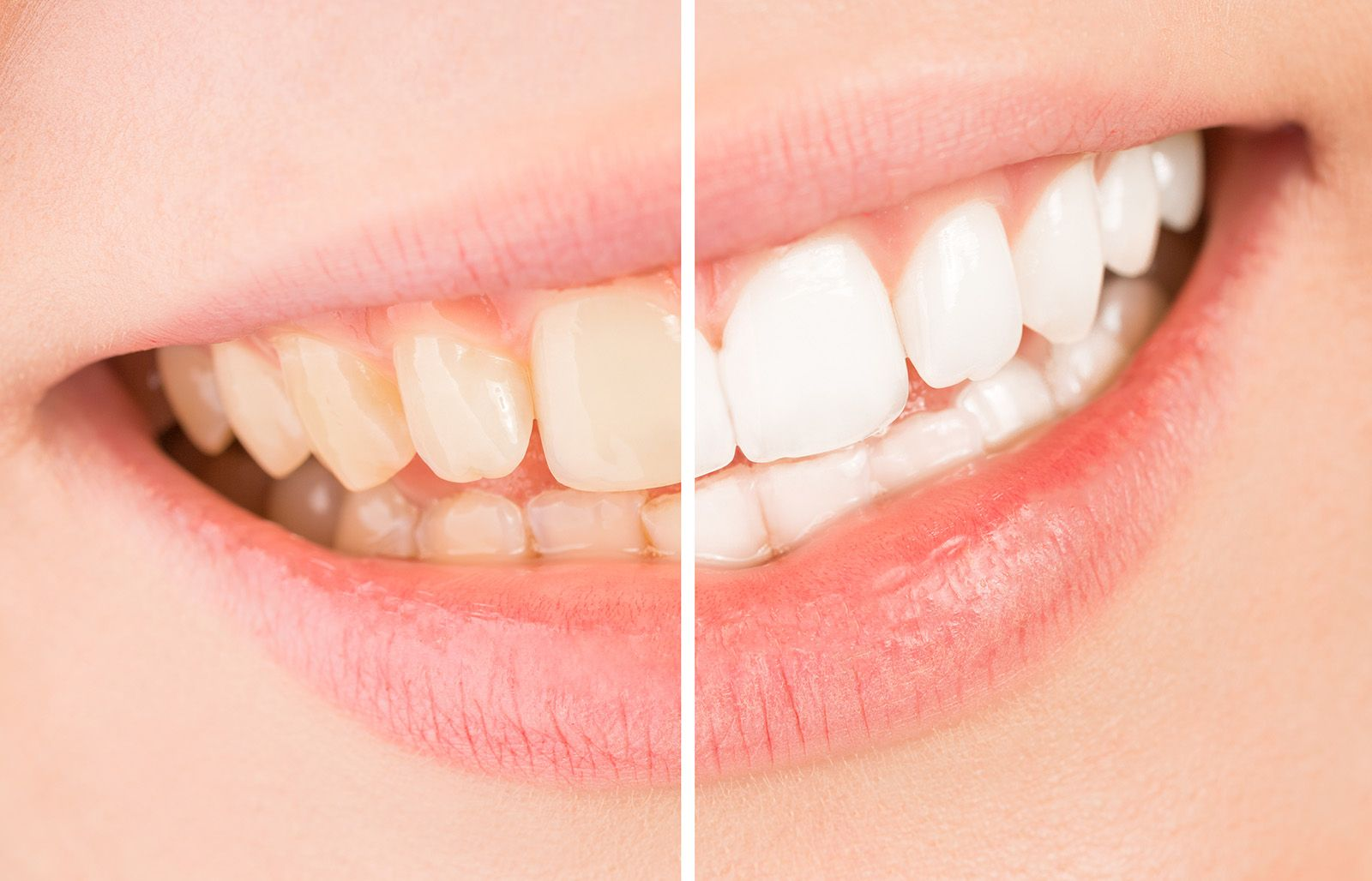 side-by-side of teeth whitening patient